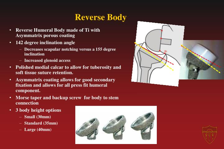 Reverse Body