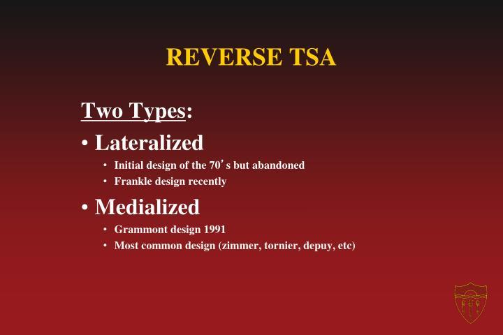 REVERSE TSA