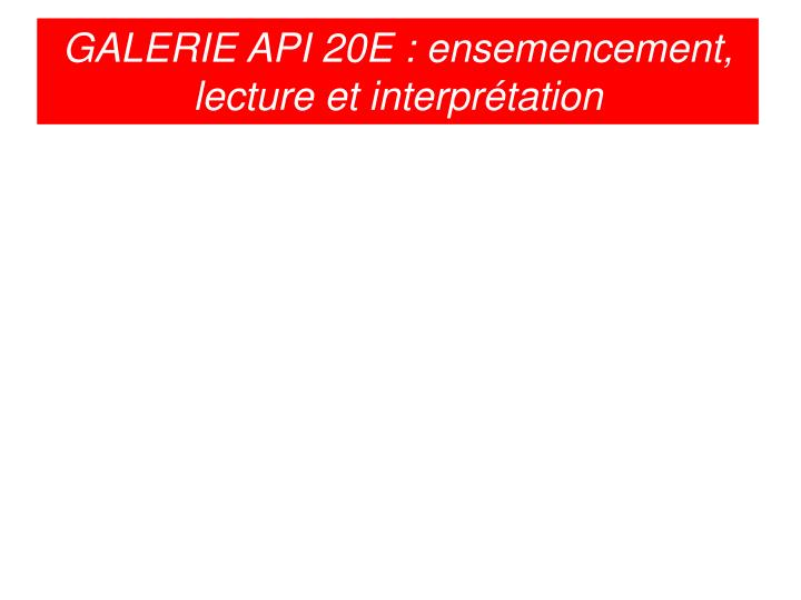 GALERIE API 20E : ensemencement, lecture et interprétation