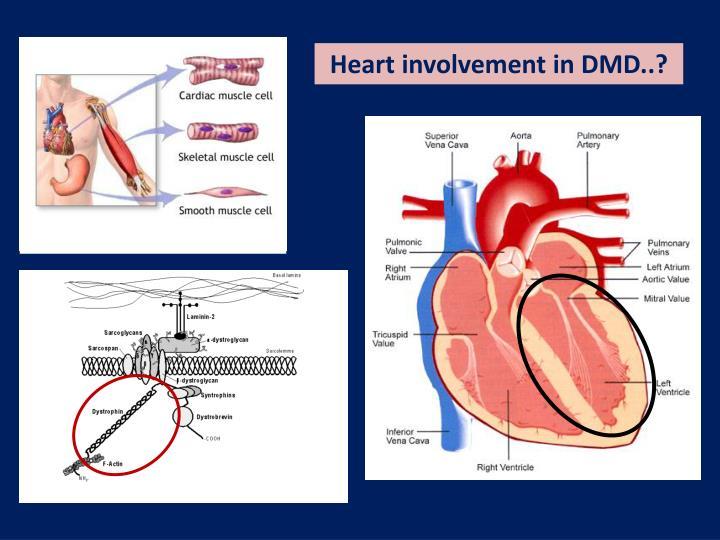 Heart involvement in DMD..?