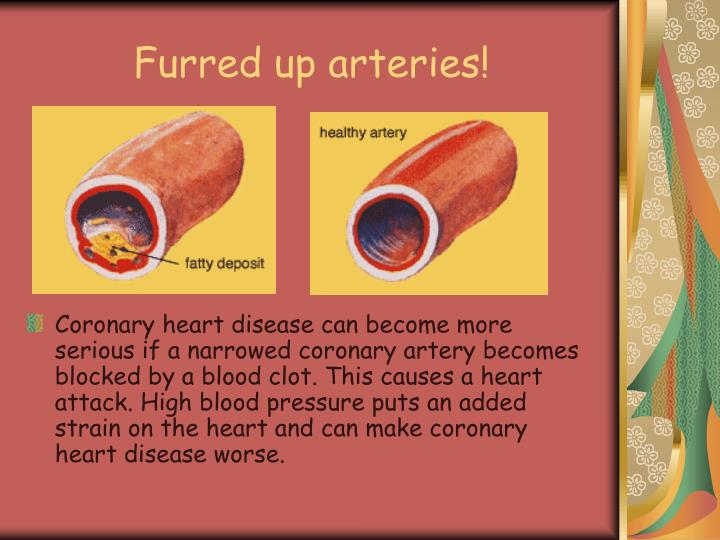 Furred up arteries!