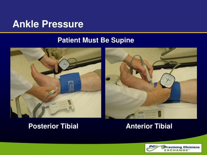 Ankle Pressure