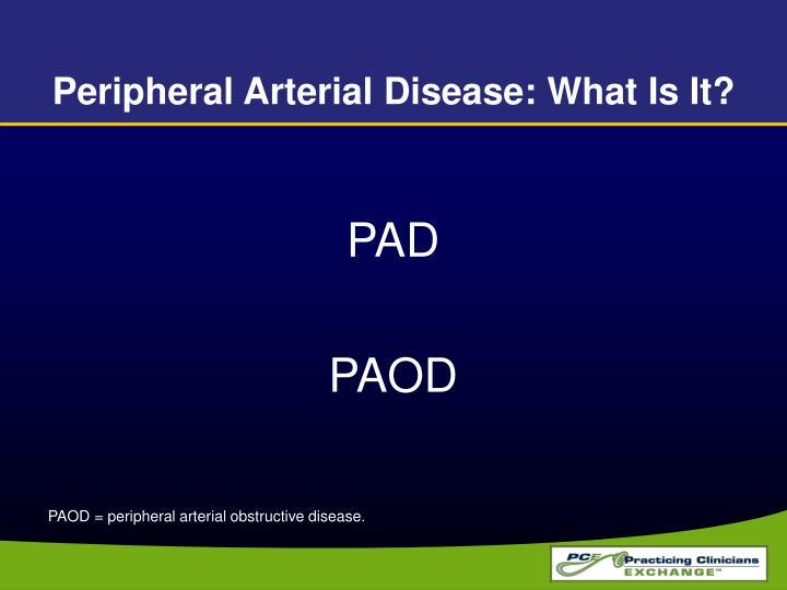 Peripheral Arterial Disease: What Is It?