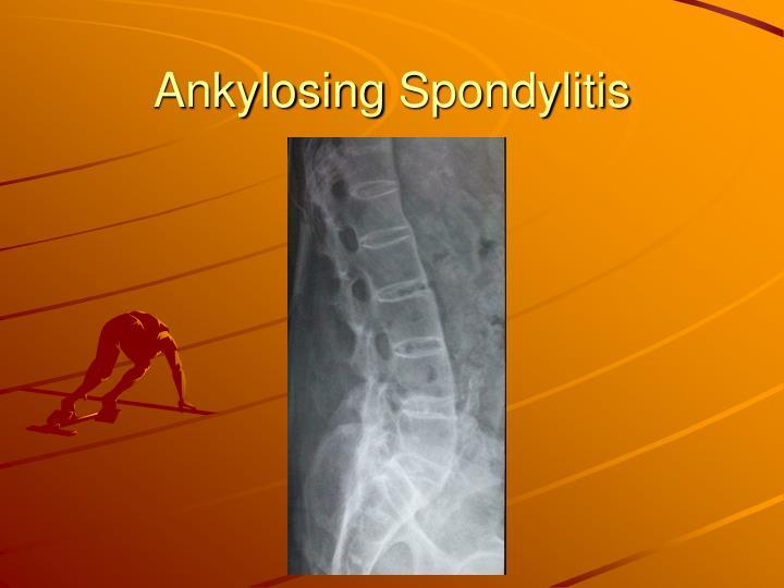 Ankylosing