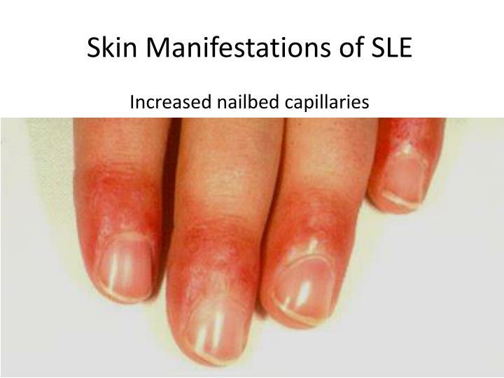 Skin Manifestations of SLE