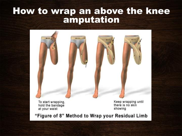 How to wrap an above the knee amputation