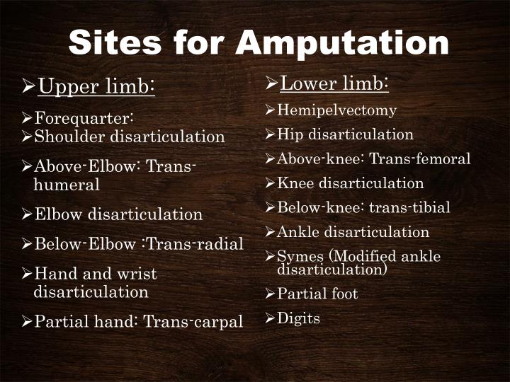 Sites for Amputation