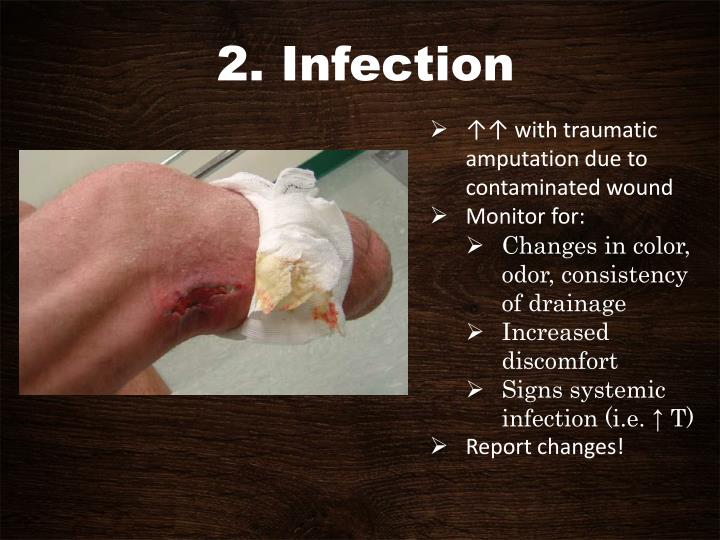 2. Infection