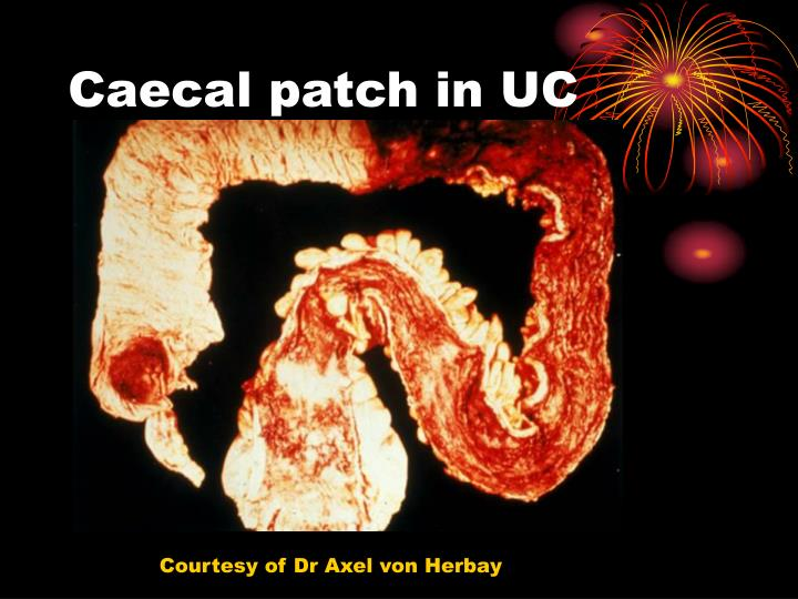 Caecal patch in UC