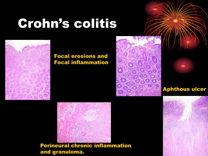 Crohn's colitis