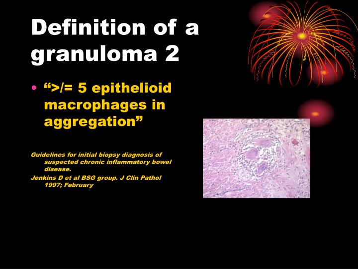 Definition of a granuloma 2