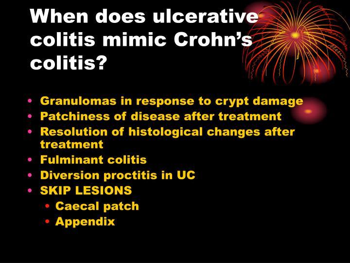 When does ulcerative colitis mimic Crohn's colitis?