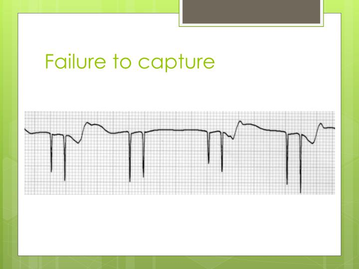 Failure to capture