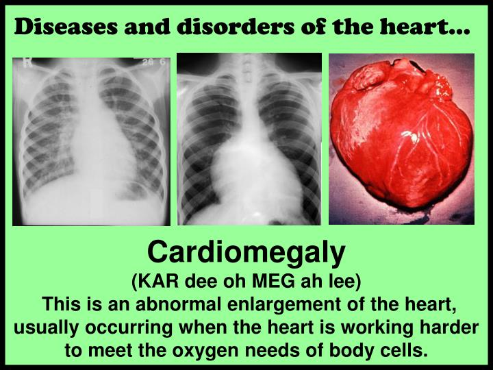Diseases and disorders of the heart…