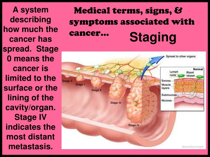 A system describing how much the cancer has spread.  Stage 0 means the cancer is limited to the surface or the lining of the cavity/organ. Stage IV indicates the most distant metastasis.