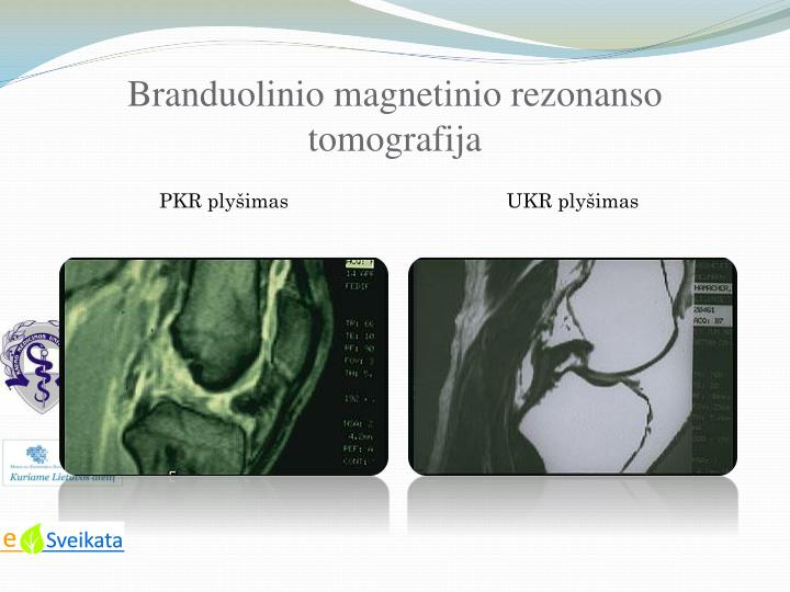 Branduolinio magnetinio rezonanso tomografija