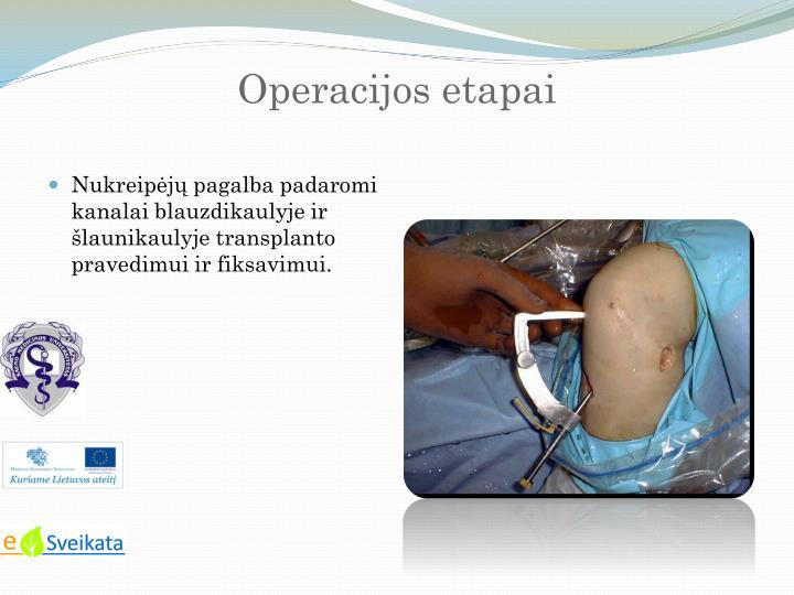 Operacijos etapai