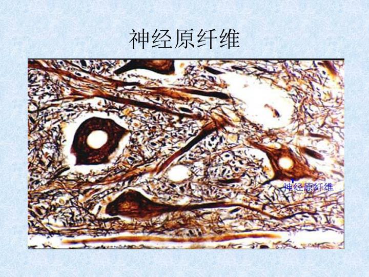 神经原纤维