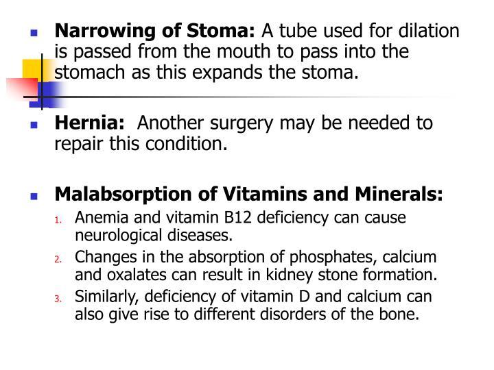 Narrowing of Stoma: