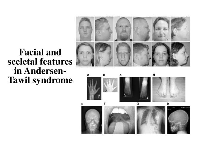 Facial and sceletal features in Andersen-Tawil syndrome