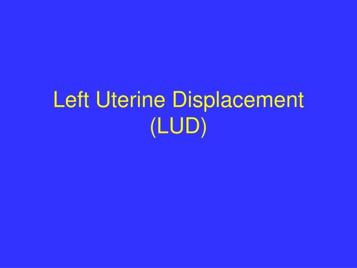 Left Uterine Displacement