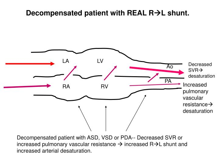 Decompensated patient with REAL R