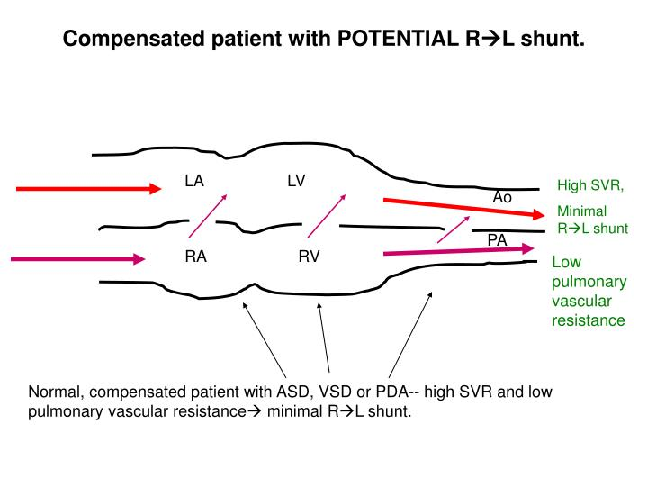 Compensated patient with POTENTIAL R