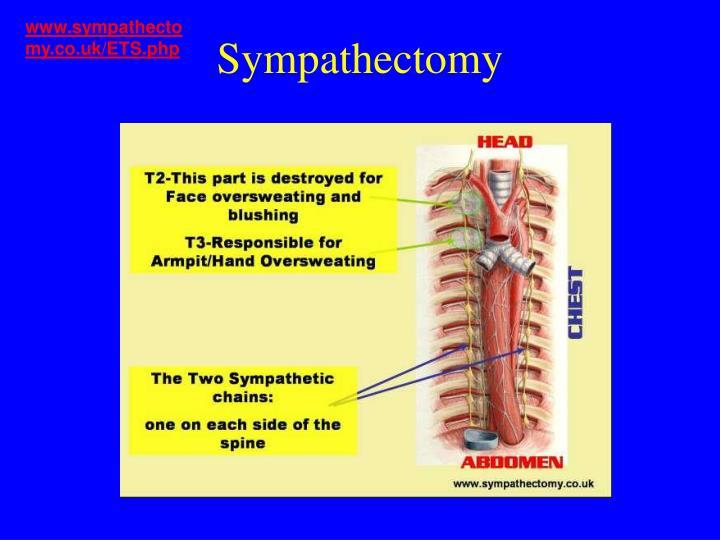 www.sympathectomy.co.uk/ETS.php
