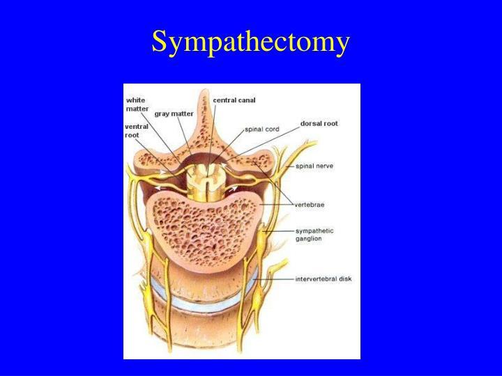 Sympathectomy