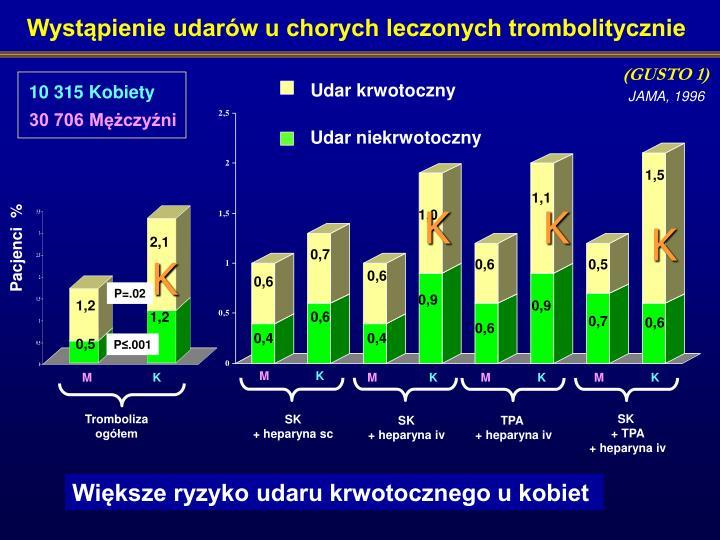 Wystąpienie udarów u chorych leczonych trombolitycznie