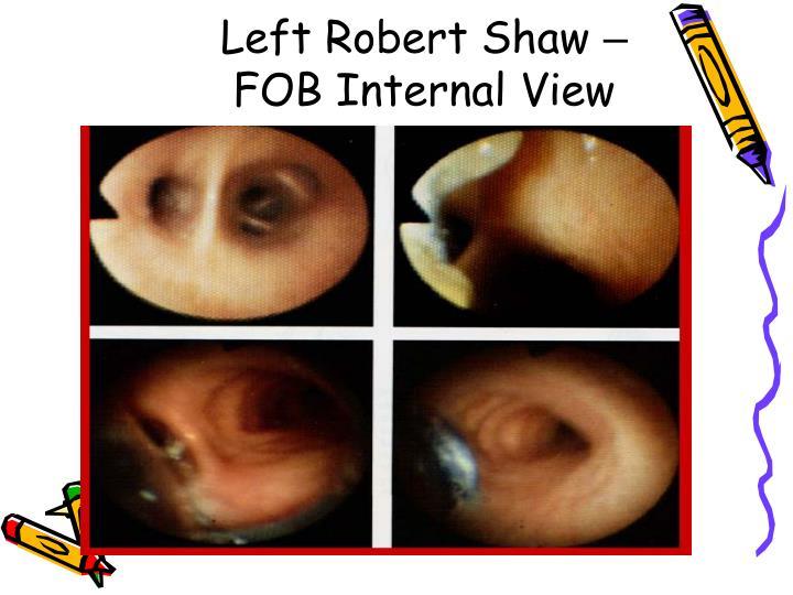 Left Robert Shaw