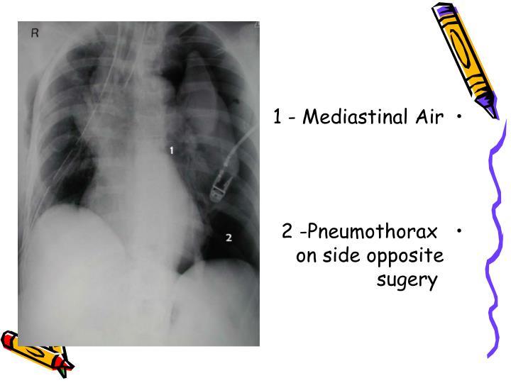 1 - Mediastinal Air