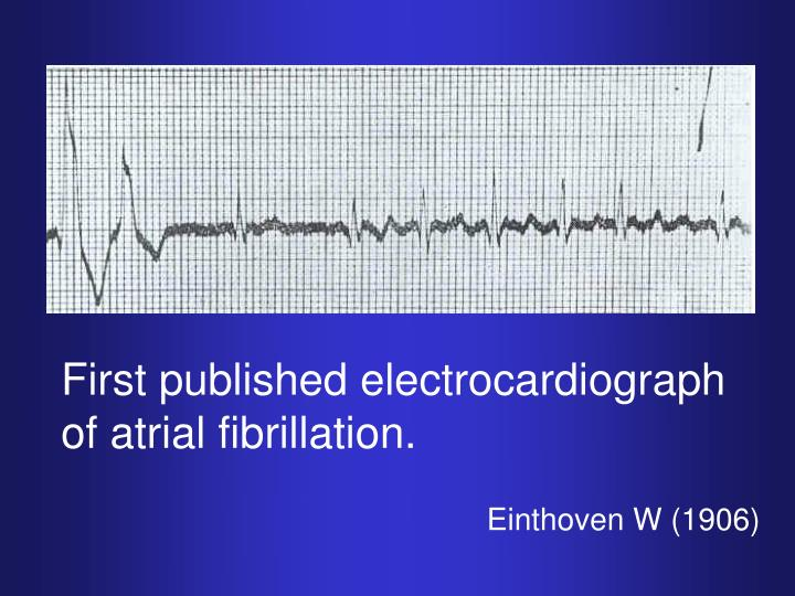 First published electrocardiograph of atrial fibrillation.