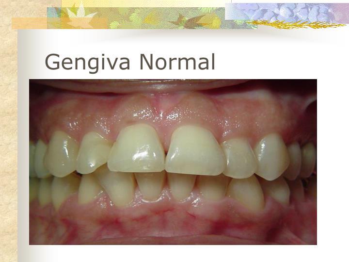 Gengiva Normal