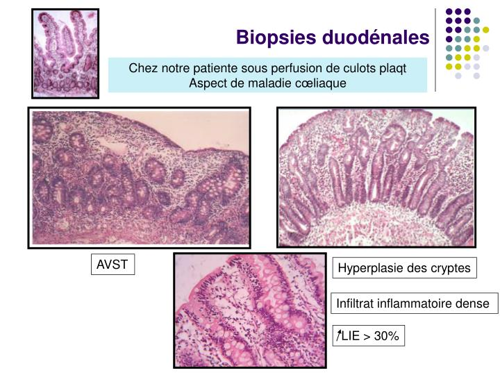 Biopsies duodénales