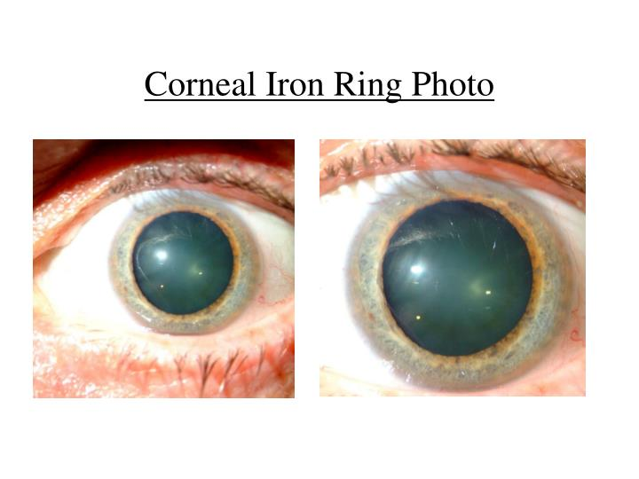 Corneal Iron Ring Photo