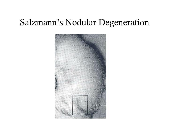 Salzmann's Nodular Degeneration