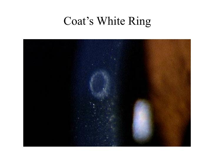 Coat's White Ring