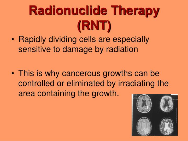 Radionuclide Therapy (RNT)