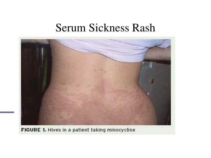 Serum Sickness Rash