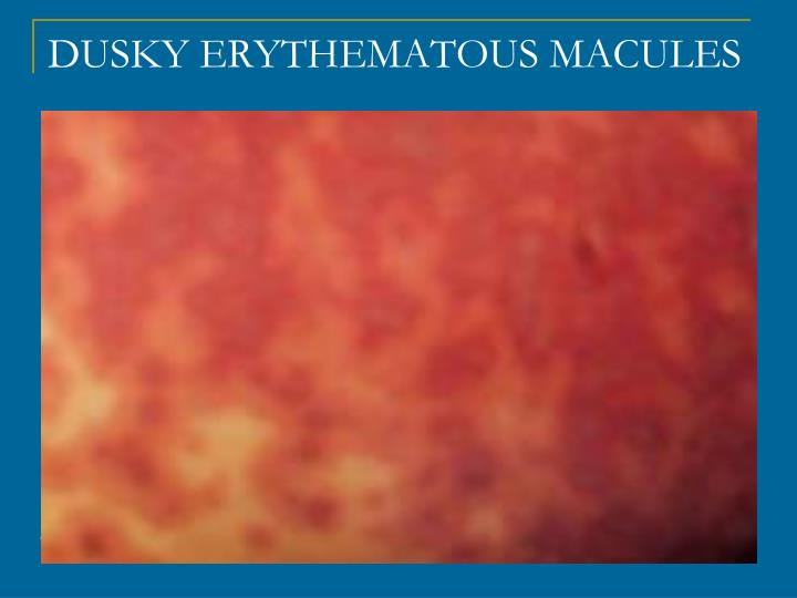 DUSKY ERYTHEMATOUS MACULES