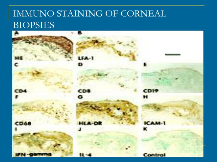 IMMUNO STAINING OF CORNEAL BIOPSIES