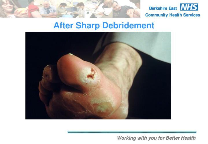 After Sharp Debridement