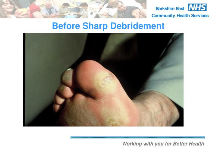 Before Sharp Debridement