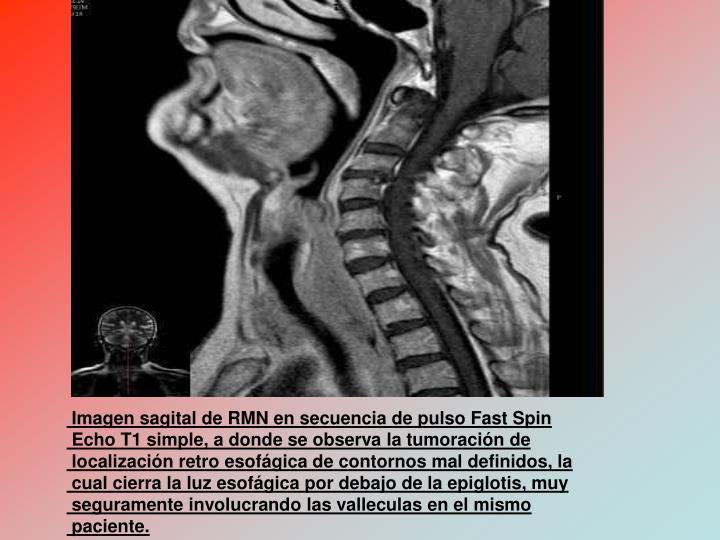 Imagen sagital de RMN en secuencia de pulso Fast Spin