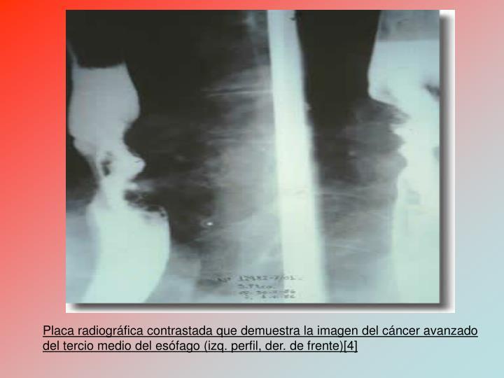 Placa radiogrfica contrastada que demuestra la imagen del cncer avanzado del tercio medio del esfago (izq. perfil, der. de frente)[4]