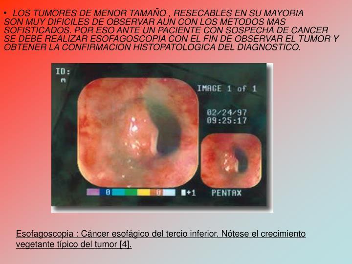 LOS TUMORES DE MENOR TAMAO , RESECABLES EN SU MAYORIA       SON MUY DIFICILES DE OBSERVAR AUN CON LOS METODOS MAS SOFISTICADOS. POR ESO ANTE UN PACIENTE CON SOSPECHA DE CANCER SE DEBE REALIZAR ESOFAGOSCOPIA CON EL FIN DE OBSERVAR EL TUMOR Y OBTENER LA CONFIRMACION HISTOPATOLOGICA DEL DIAGNOSTICO.