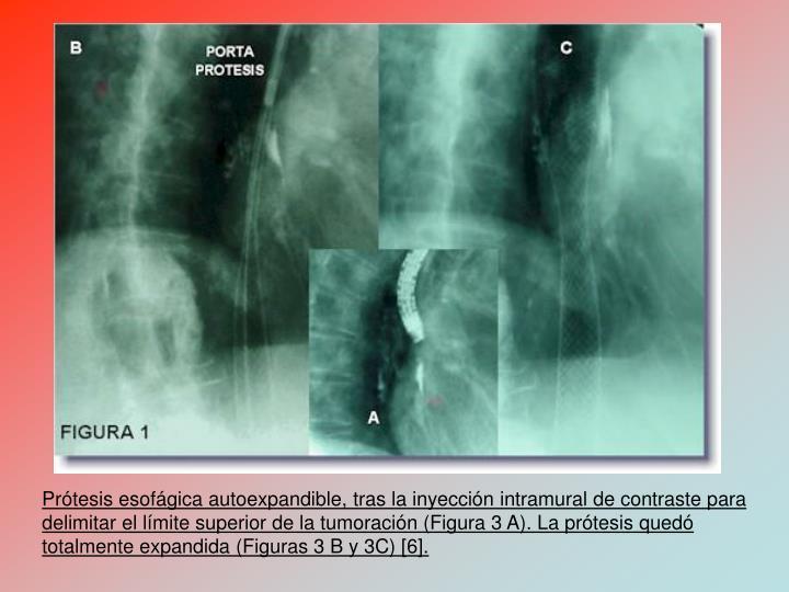 Prtesis esofgica autoexpandible, tras la inyeccin intramural de contraste para delimitar el lmite superior de la tumoracin (Figura 3 A). La prtesis qued totalmente expandida (Figuras 3 B y 3C) [6].