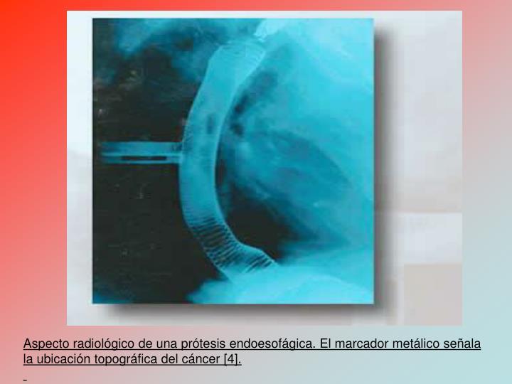 Aspecto radiolgico de una prtesis endoesofgica. El marcador metlico seala la ubicacin topogrfica del cncer [4].