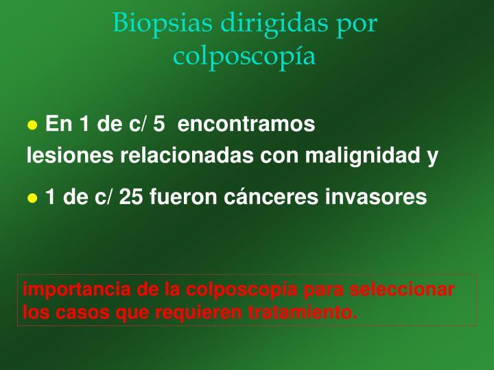 Biopsias dirigidas por colposcopía